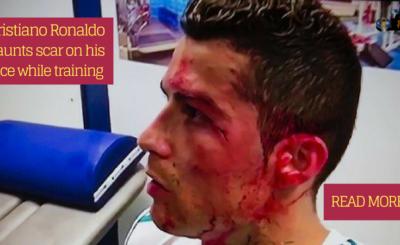 Cristiano Ronaldo flaunts scar